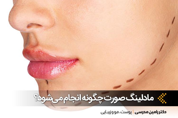 مادلینگ صورت در اصفهان