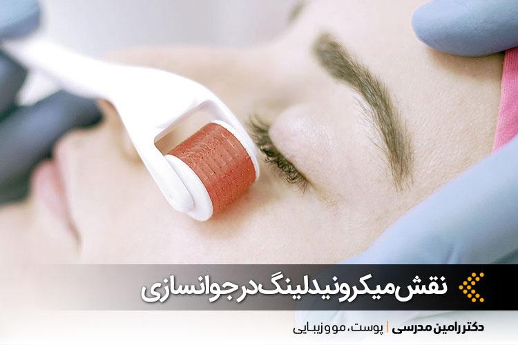 میکرونیدلینگ در اصفهان