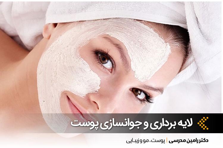 بهترین لایه برداری پوست در اصفهان