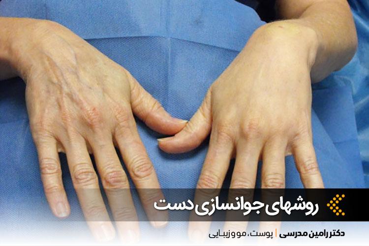 جوانسازی دستها
