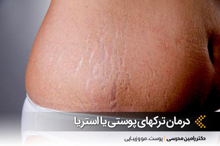 درمان استرچ مارک در اصفهان