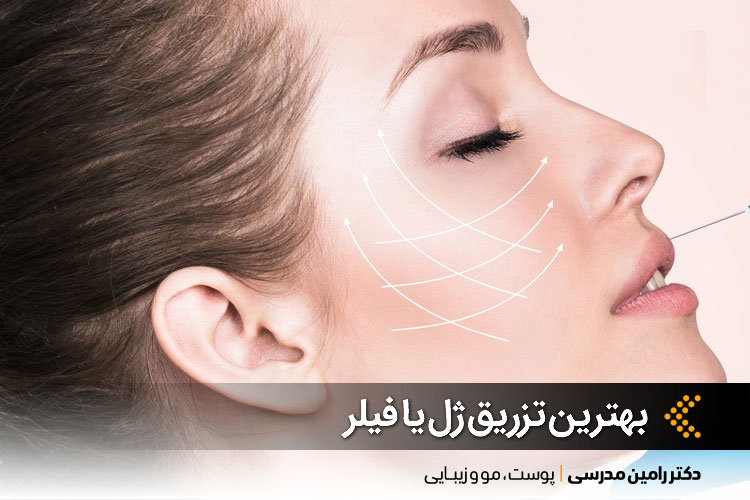 بهترین تزریق ژل یا فیلر در اصفهان