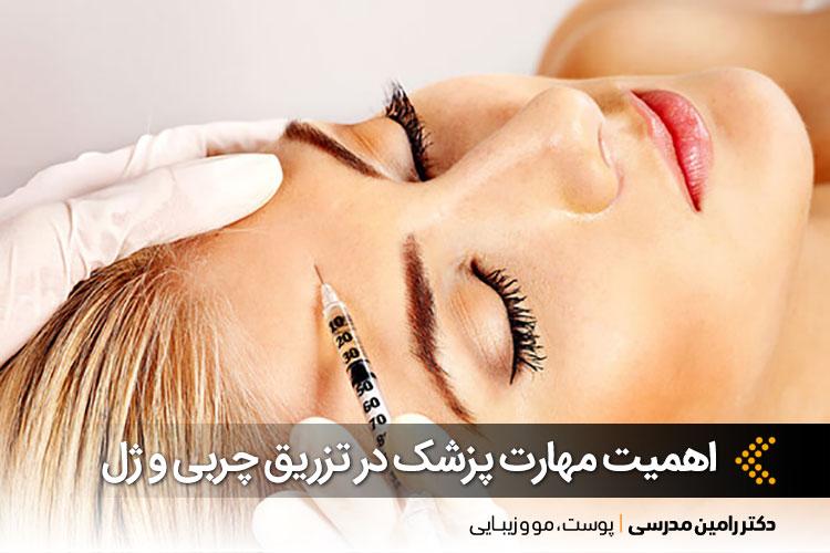 تزریق چربی و ژل در اصفهان