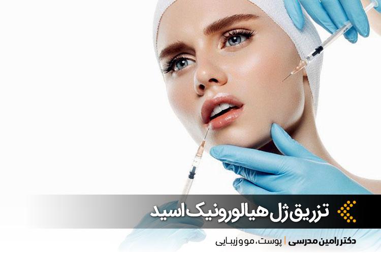 تزریق ژل هیالورونیک اسید در اصفهان