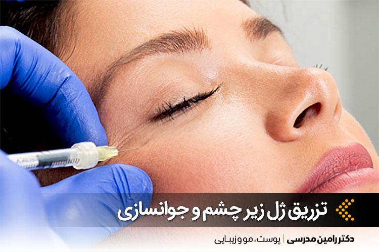 تزریق ژل زیر چشم در اصفهان