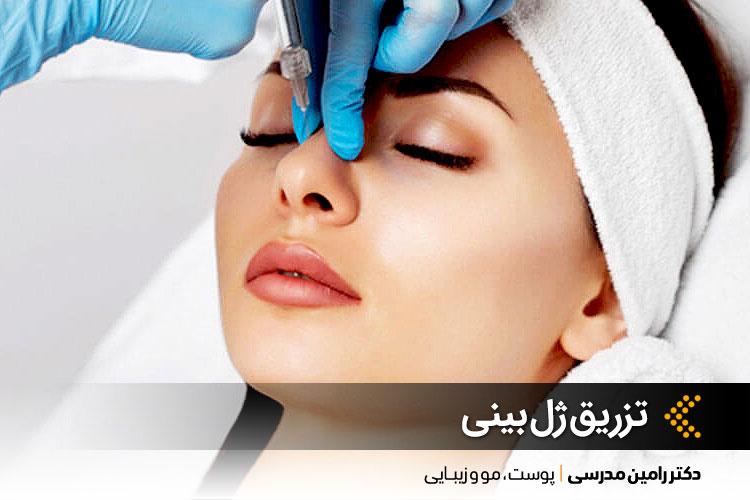بهترین تزریق ژل بینی در اصفهان