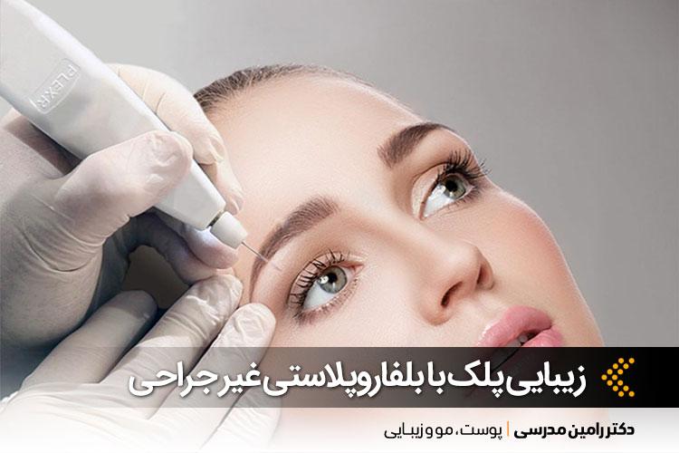 اهمیت پلک در جذابیت چهره