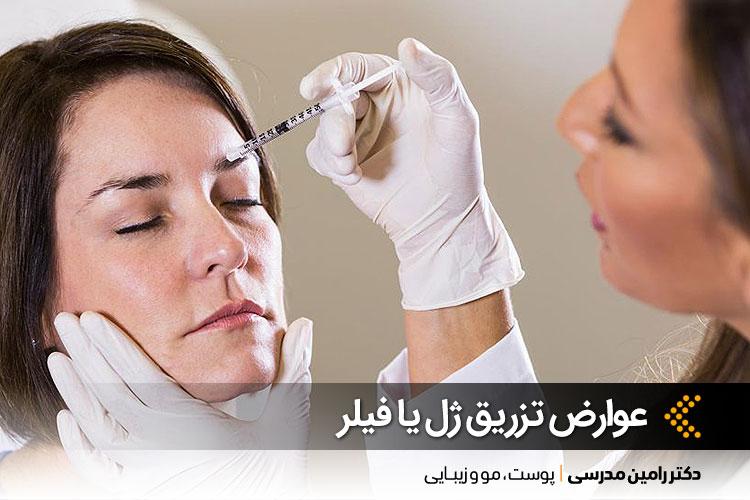 تزریق ژل یا فیلر و عوارض آن