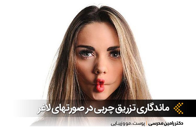 تزریق چربی صورتهای لاغر در اصفهان