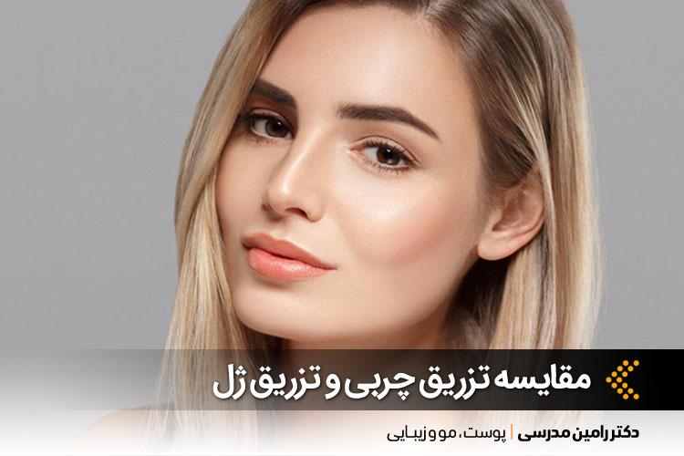 تزریق چربی و تزریق ژل در اصفهان