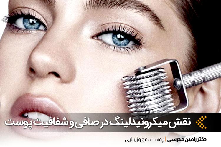جوانسازی پوست به روش میکرونیدلینگ