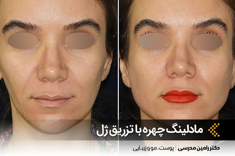 مادلینگ چهره با تزریق ژل در اصفهان