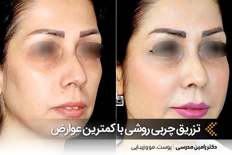 تزریق چربی با کمترین عوارض در اصفهان