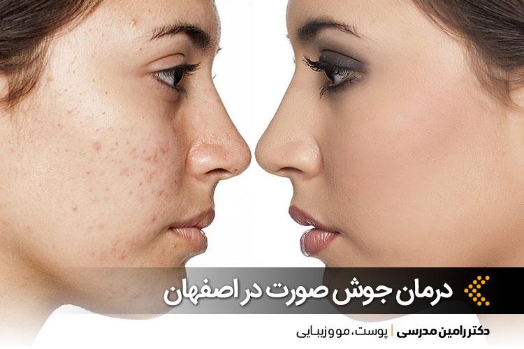 درمان جوش صورت در اصفهان