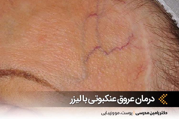 درمان عروق عنکبوتی در اصفهان