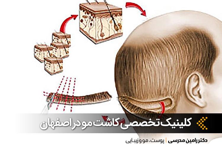 بهترین کلینیک کاشت مو در اصفهان