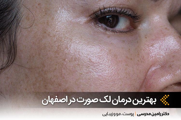 درمان لک صورت در اصفهان